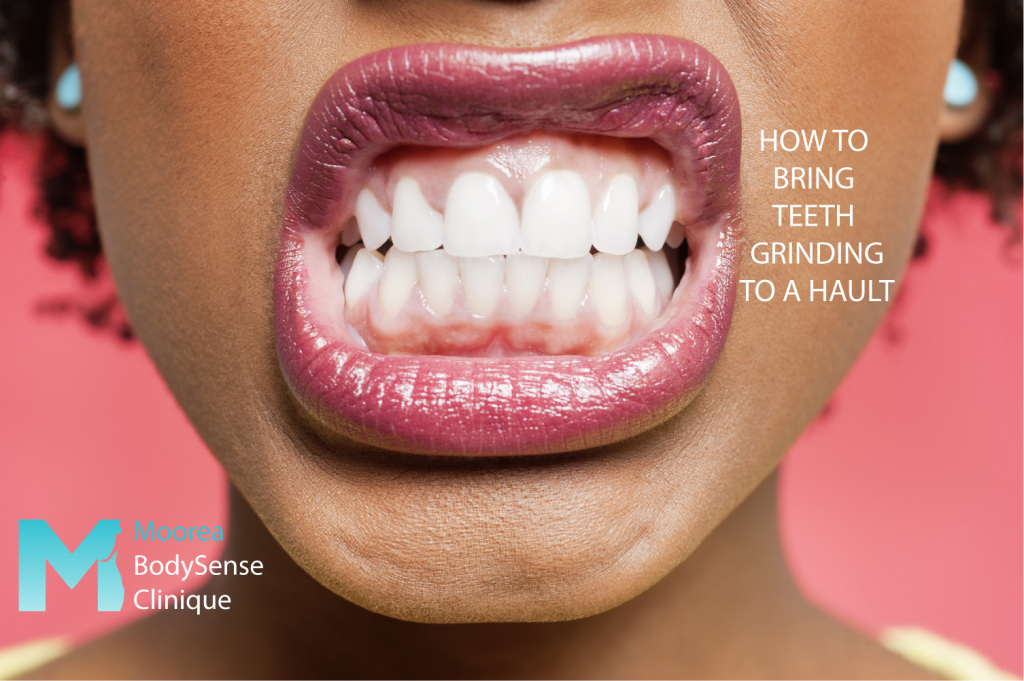 Do you suffer from chronic teeth grinding? Moorea Body Clinique can help you!