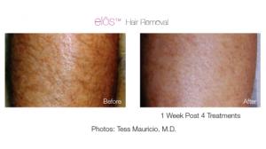elos hair removal 1_0