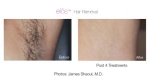 elos hair removal 2