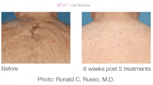 elos hair removal 3