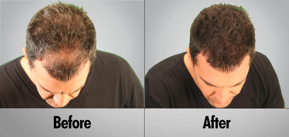 hair-transplant-thumb11