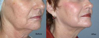 mesotherapy_before_after3