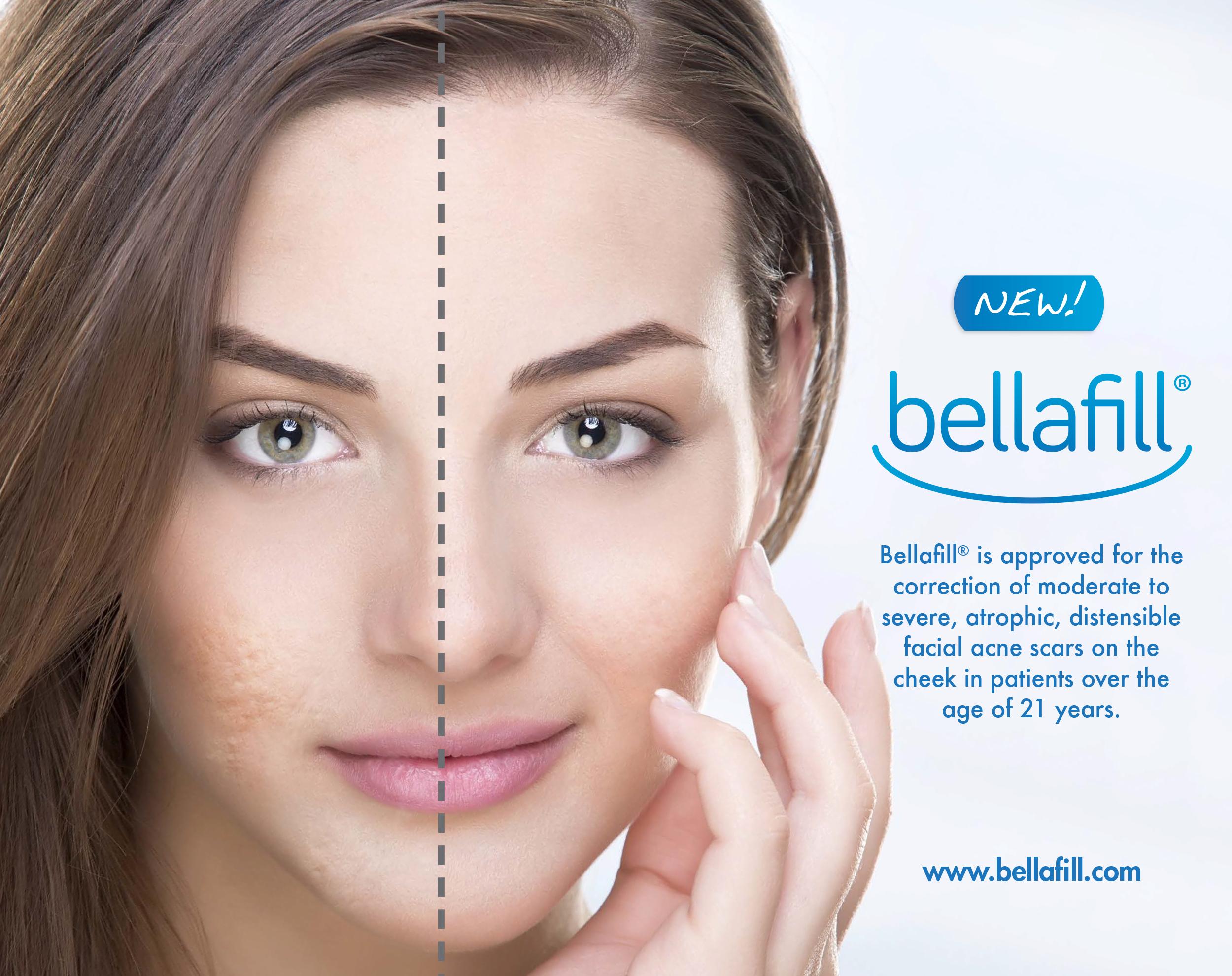 Bellafill-promo
