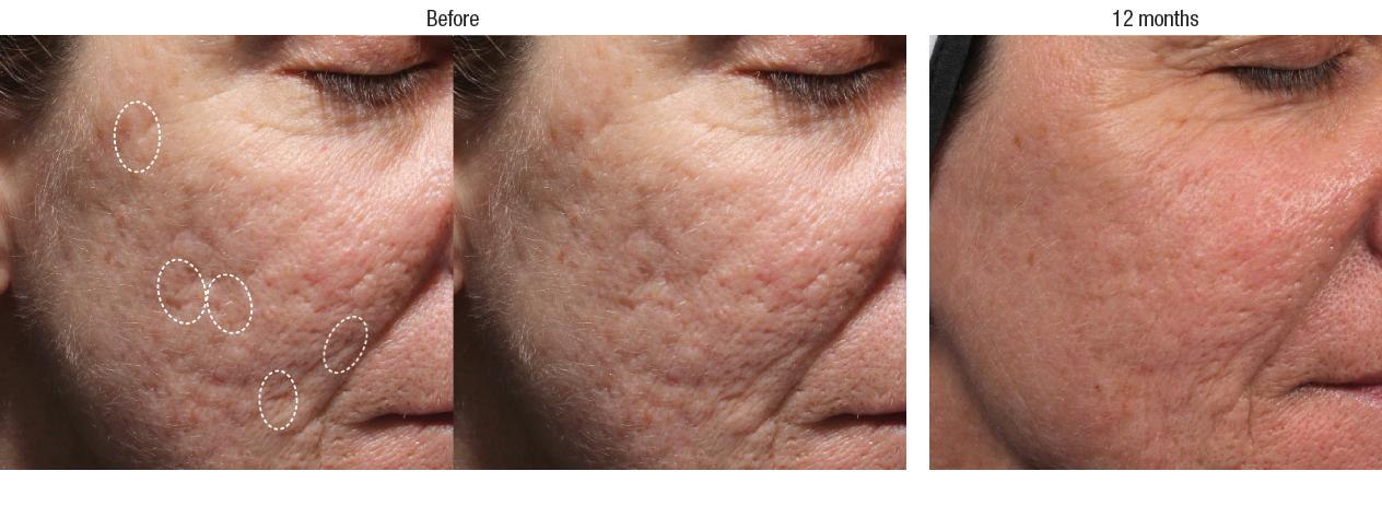 bellafill-acne-scars-2