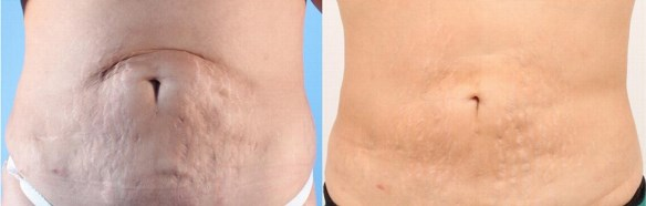 Derma-Pen-Stretch-marks-before-and-after