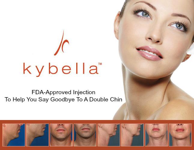 Kybella-injection
